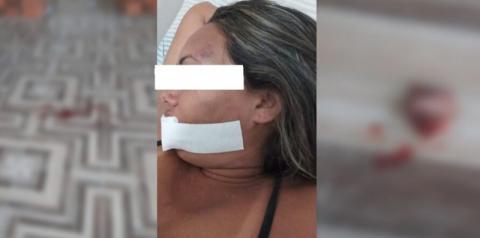 Mulher tem parte do queixo arrancado em tentativa de estupro