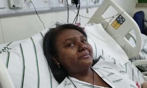 Brumadinho: única vítima da tragédia que ainda estava internada recebe alta